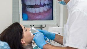 como-funciona-escaneamento-intraoral
